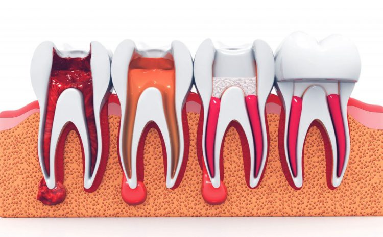 Root Canal Treatment: Everything You Need To know