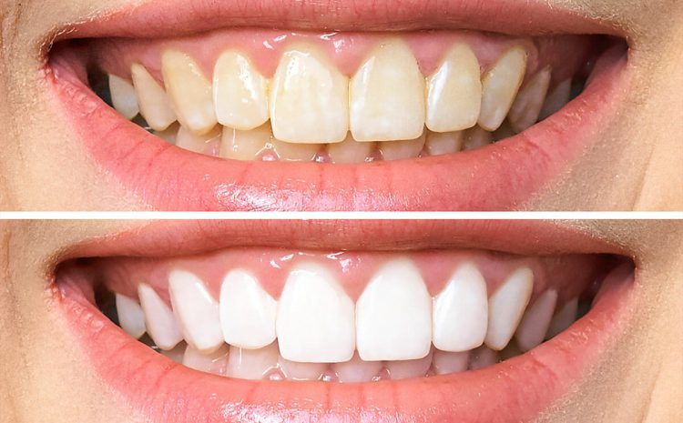 Cost of Teeth Whitening in Australia 2021