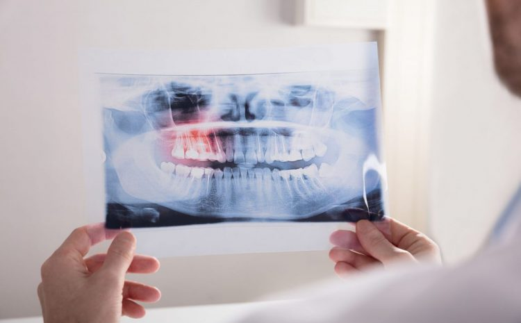 Emergency Wisdom Teeth Removal: Everything You Need To Know
