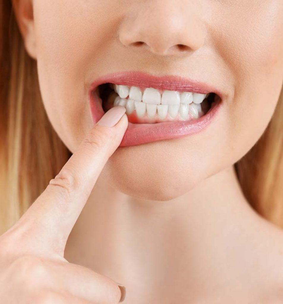 Gum Disease Treatment Mandurah by Peel Dental Studio