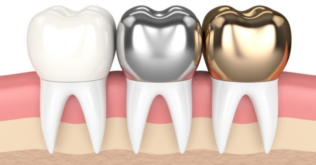 Dental Crowns Everything You Need To Know Procedure, Cost, and Options.