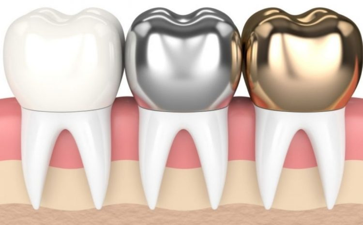 Dental Crowns: Everything You Need To Know Procedure, Cost, and Options.