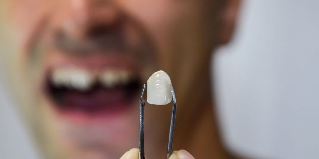 How To Treat Pain Caused By A Broken Tooth?