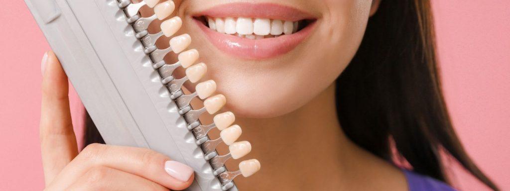 What Are Veneers: A Detailed Guide By Peel Dental Studio