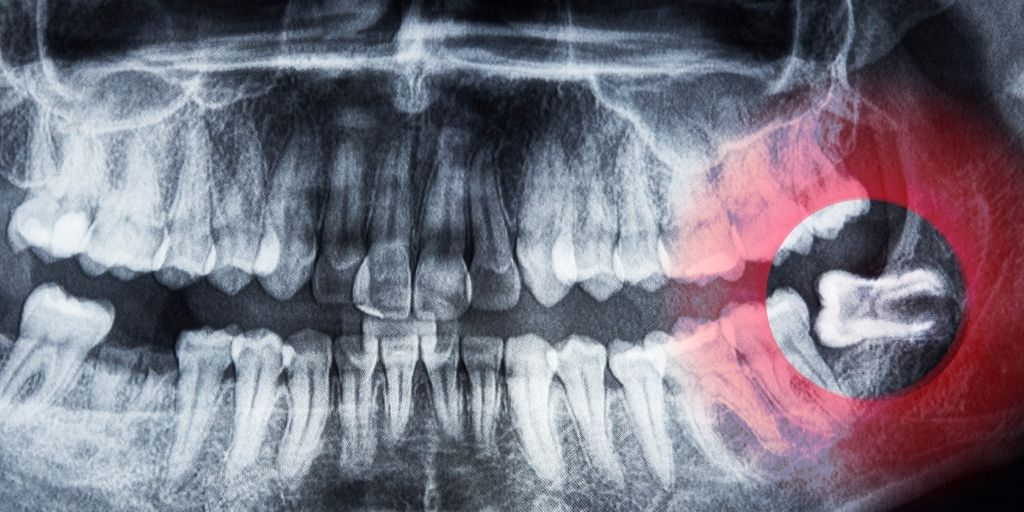 What Is Wisdom Teeth Removal: Everything You Need To Know