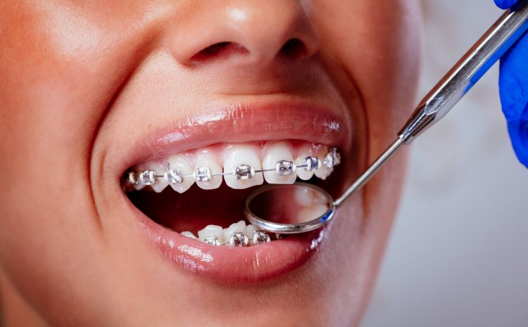 Is It Safe to Use Teeth Whitening While Wearing Braces?