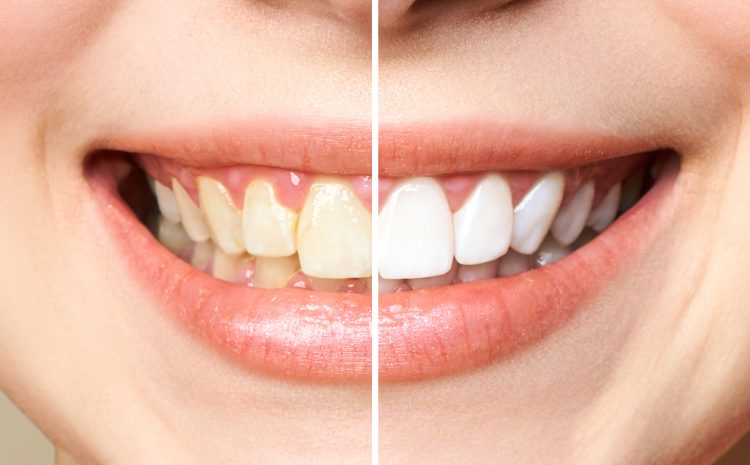Causes of Teeth Discolouration And How to Prevent it